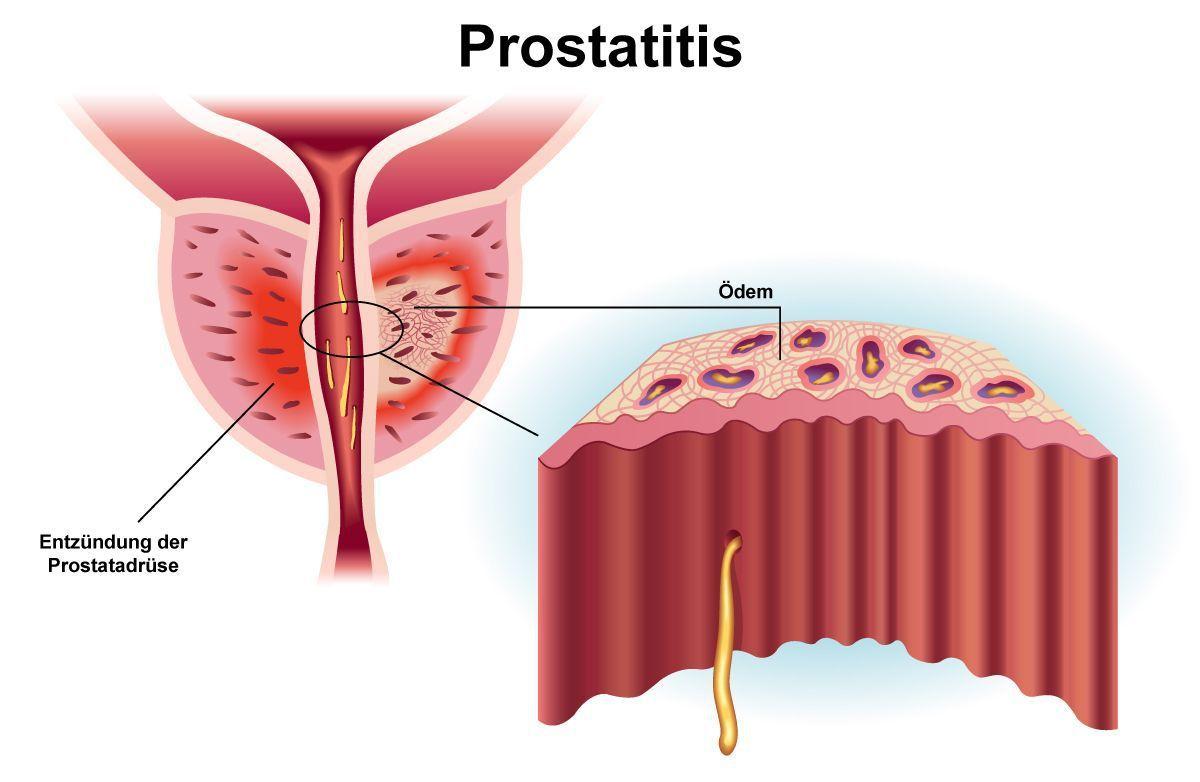 abakterielle prostatitis behandeln)